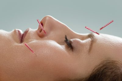 LIFTING ADVANCED BEAUTY ACUPUNCTURE